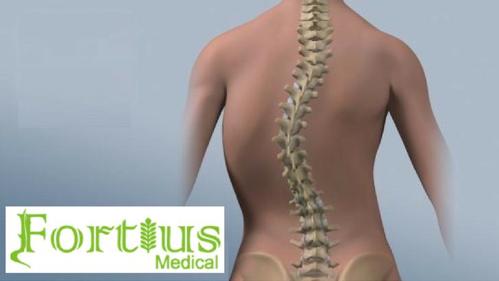 Scolioza: Principalele cauze care duc la deformarea coloanei