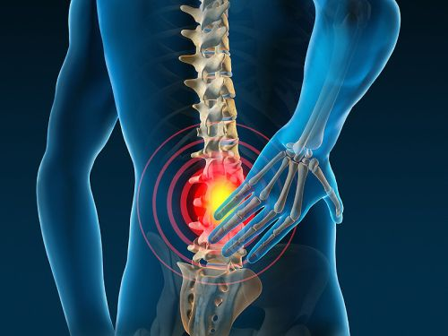tratamentul articulațiilor intervertebrale