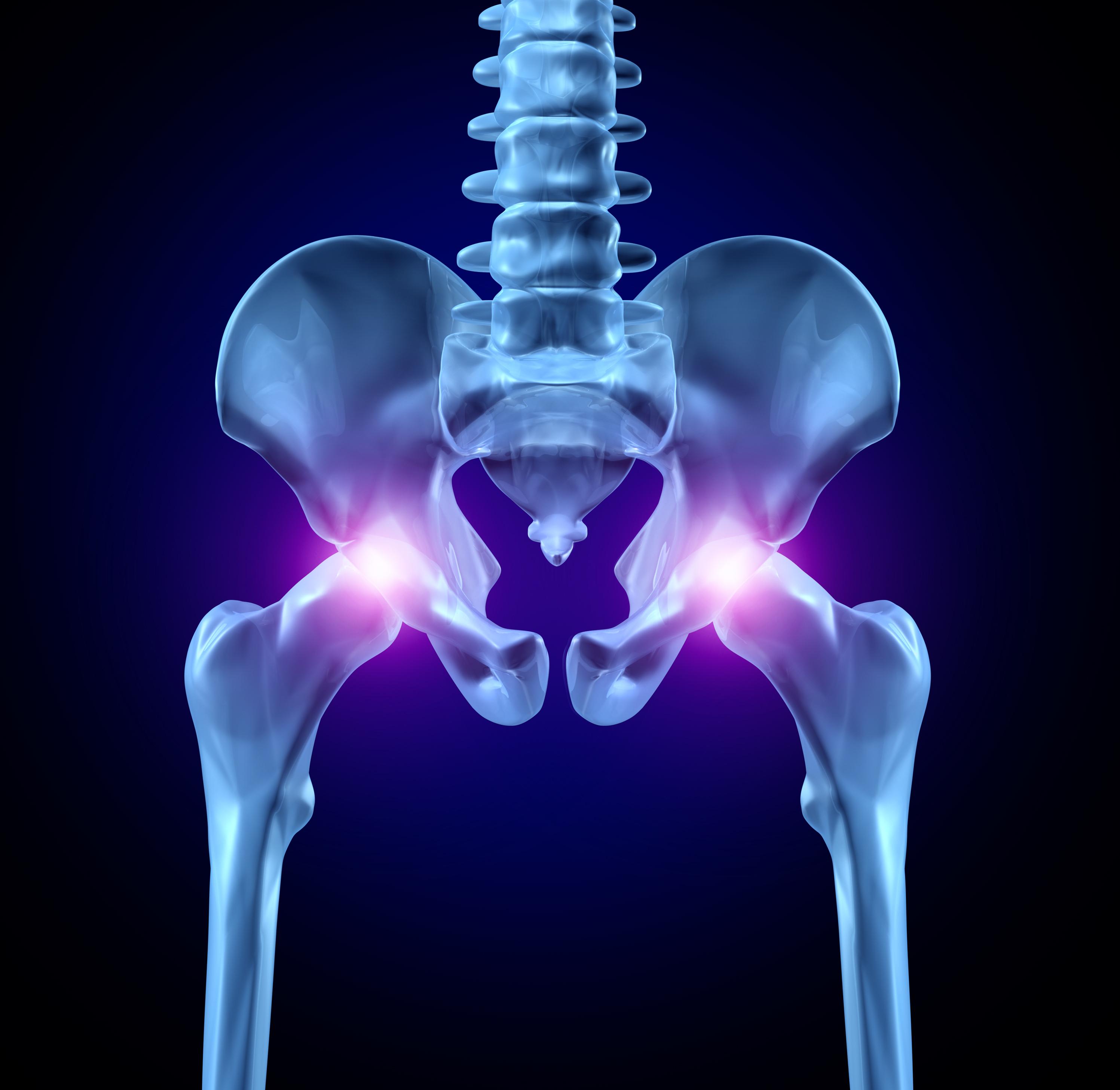 tratament eficient pentru artroza articulației șoldului inflamația gleznei este