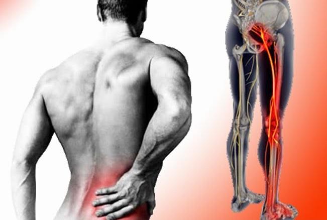 Pentru a u?ura durerea in hernia coloanei vertebrale lombare la domiciliu