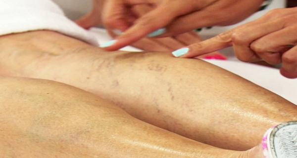 varicoză și dureri de spate