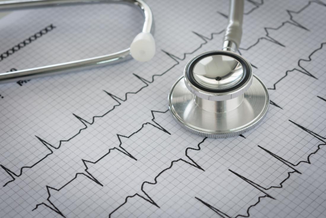 Recuperarea medicala a afectiunilor cardio-vasculare