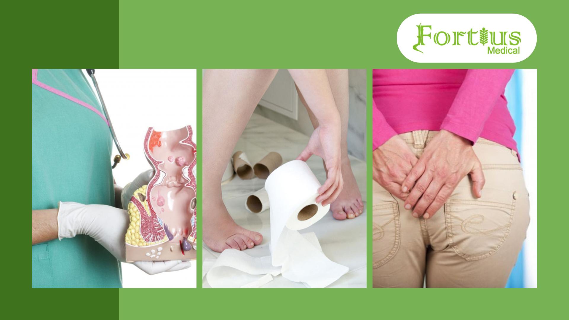 Boala hemoroidală - ce trebuie să știi despre hemoroizi și fisuri anale?