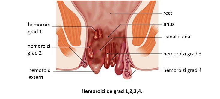Tromboza anala