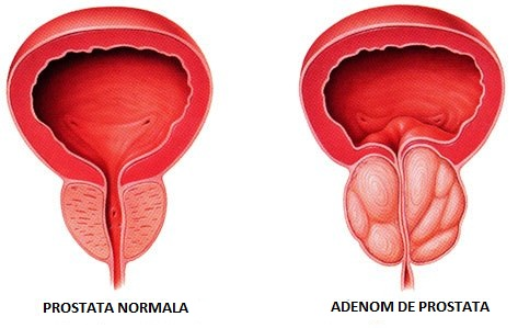 Adenom de prostată