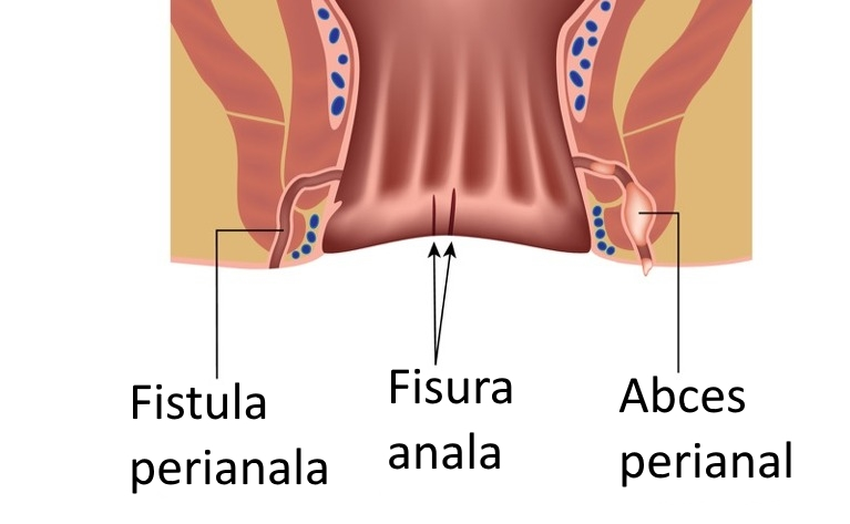 Abces perianal