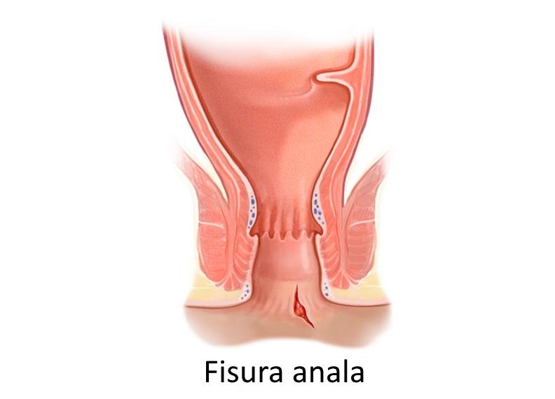 Fisuri anale